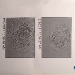 Committed to eSET: Why we transferred just one embryo