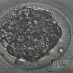 My embryo donation failure